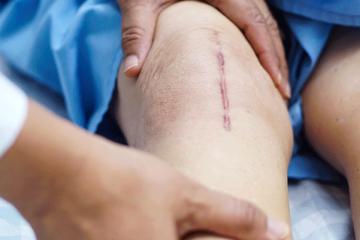 Exposição solar x Cicatrizes pós-cirúrgicas